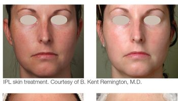 ipl-acne-before-after-2