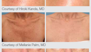 ipl-acne-before-after-3