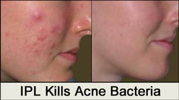 ipl-kills-acne